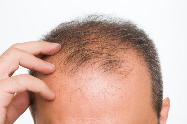 https://i0.wp.com/www.mensfitness.com/sites/mensfitness.com/files/imagecache/node_page_image/article_images/male-pattern-baldness-main_0.jpg