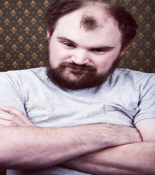 Your Diabolical Follicles Treating Male Pattern Baldness  Mens Fitness