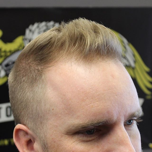 Balding Forehead Hairstyles - HairStyle