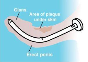 Gráfico de cura de enfermedad de la peyronie