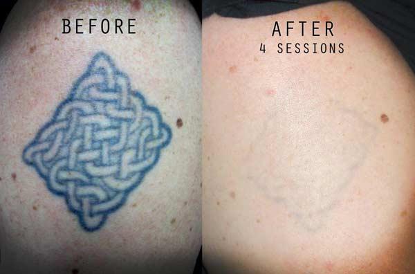 Tattoo London The Circle. laser treatment