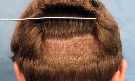 Unshaven Hair Transplant – Facts You Should Consider!