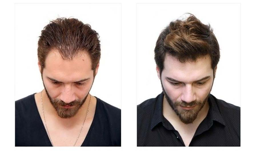Why More Men Are Choosing a London Hair Transplant Clinic