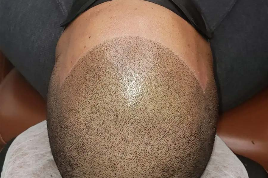 What Are Hairline Tattoos??