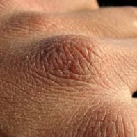 peau seche calophyllum