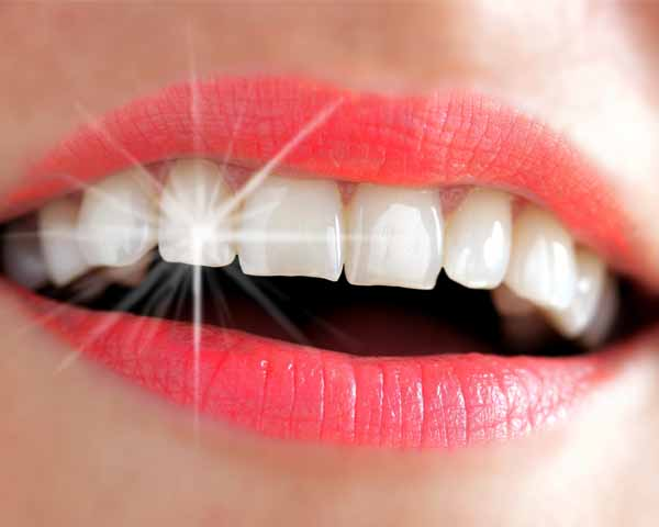 Dents blanches 600 x 480