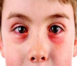 göz-kanlanması-nedir