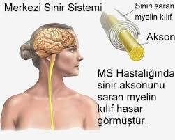 ms hastalığı