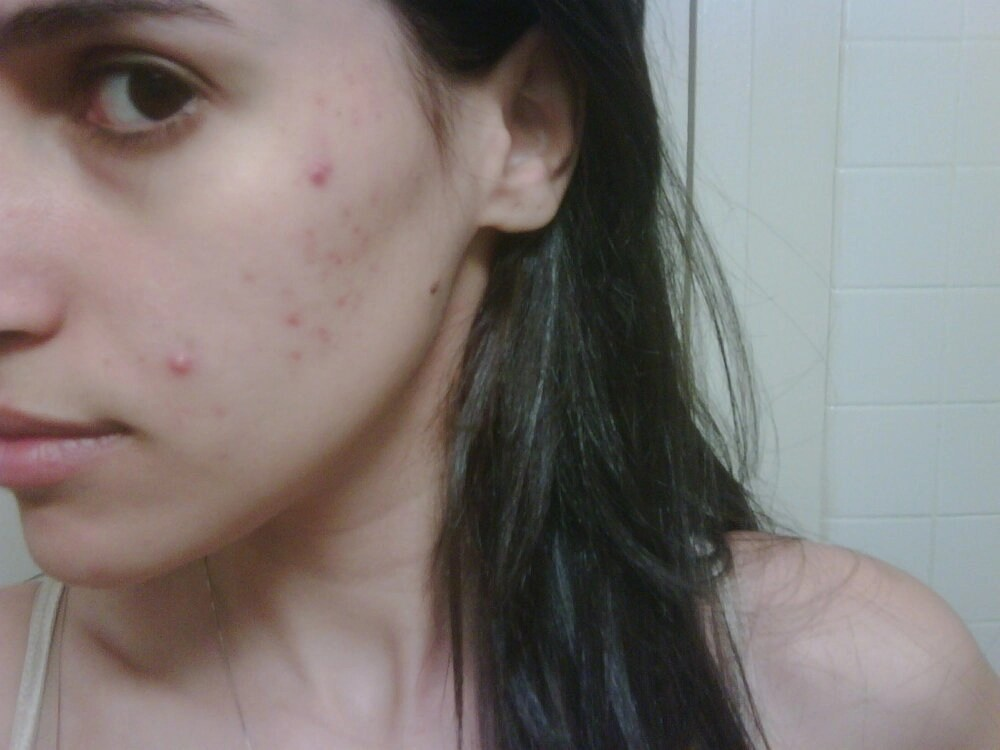 adult acne mercedes sanchez