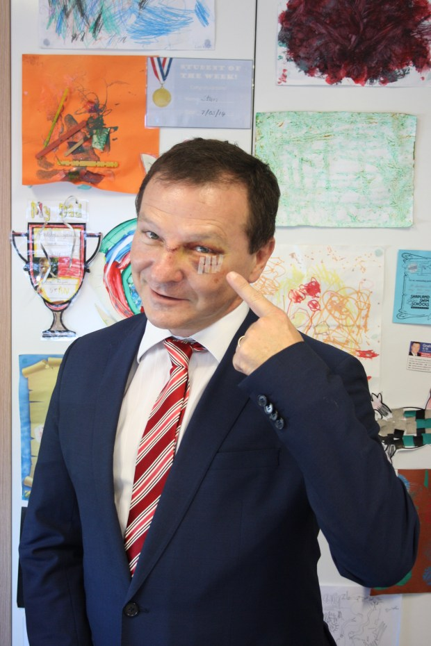 "Australian lawmaker Graham Perrett shows his injuries sustained three days earlier while watching ""Veep."" (AP Photo/Ben Driscoll)"