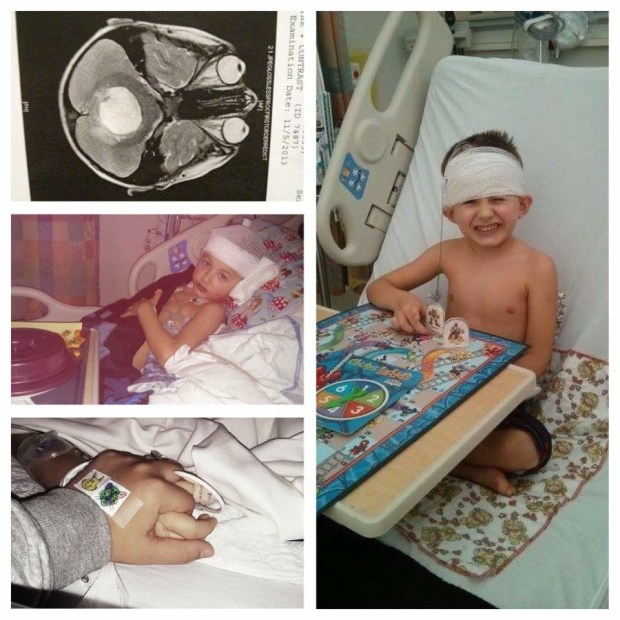 The top left picture shows the tumor (in white) when doctors first found it. (Courtesy of Jason DeLisle)