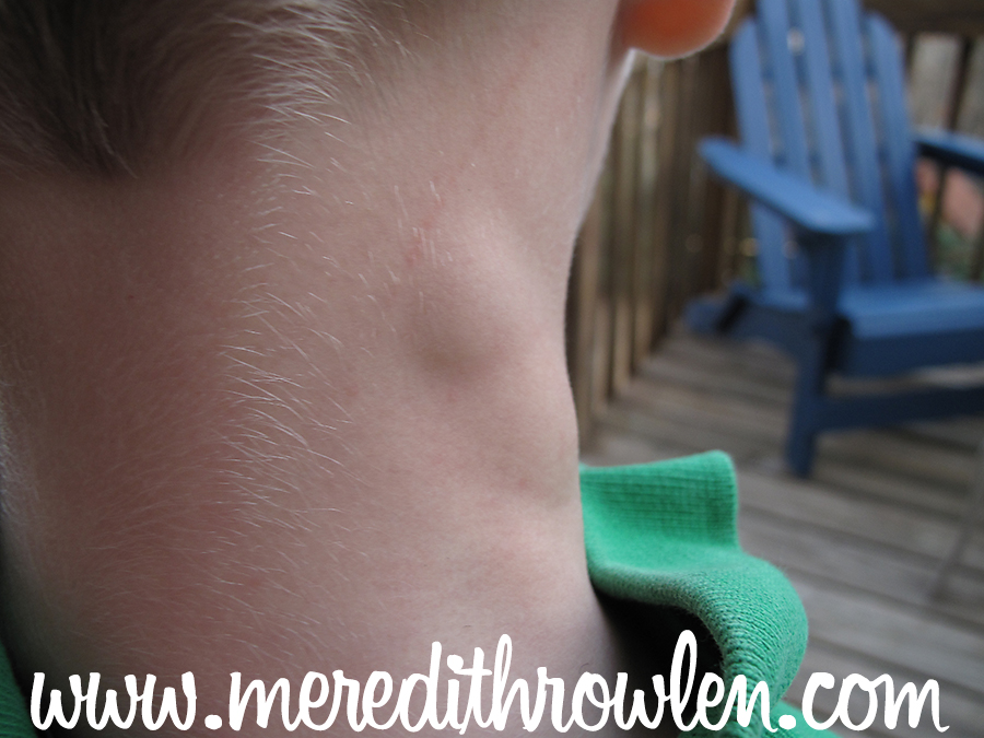 September is Hodgkin's Lymphoma Awareness Month: What Does Lymphoma Look like in the neck of a 5 year old boy?