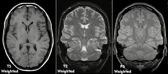 Examples of T1 weighted, T2 weighted and PD weighted MRI scans