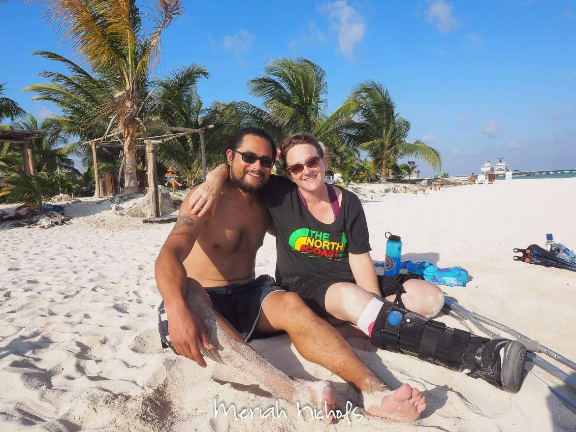 me and mikey on the beach at mahahual, mexico. best beach ever. my foot was broken and is in the cast in front of me.