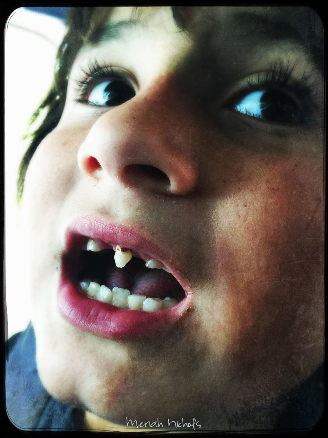 WIGGLING... (he saw this photo and said he looked like a one-toothed vampire)