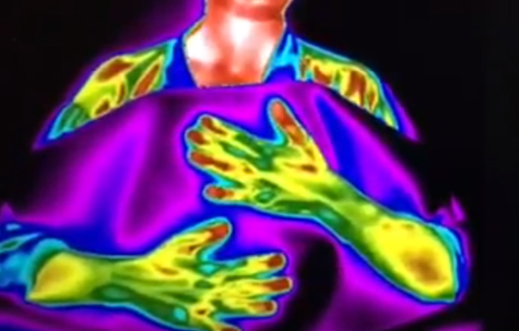 thermoscan of how acupuncture affects the body
