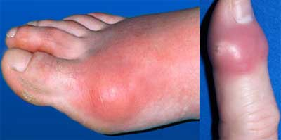 Increased-Blood-Uric-Acid-Causes-Gout-Arthritis