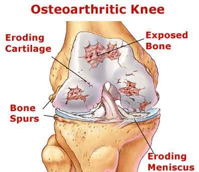 Osteoarthritis-Degenerative-or-Mechanical-Arthritis