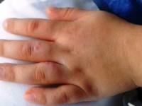 Boala mână-gură-picior revine. Ce trebuie să știe părinții