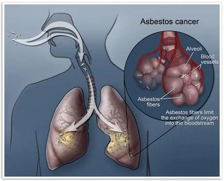 The Hidden Killer In Older Homes- Asbestos Safety | The