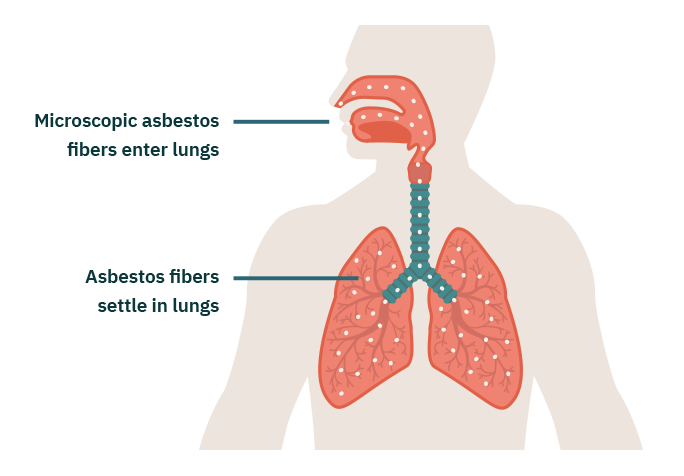 What Causes Mesothelioma Cancer?