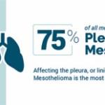 pleural mesothelioma diagnosis, treatment and life expectancymesothelioma diagnosis statistics