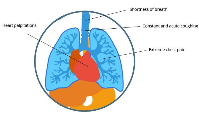 mesothelioma symptoms early warning