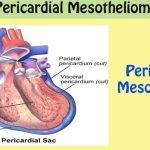 pericardial mesothelioma mesothelioma affecting the heartwhat is pericardial mesothelioma?