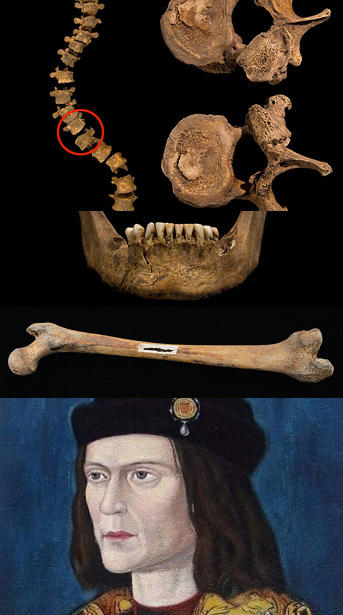 richardIII_skull