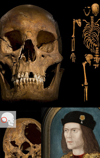 richardIII_skull_1