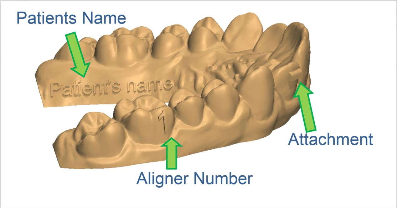 hight resolution of how to maintain the aligner