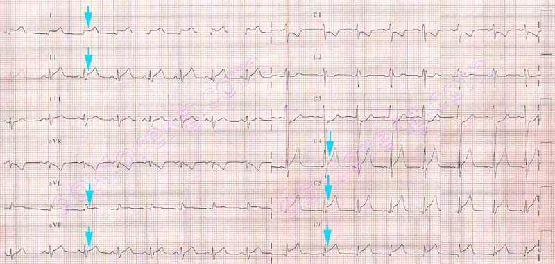 Image result for pericarditis ecg