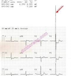 ecg 4b the ecg summary page of the same patient is seen above now the machine has printed all derivations at a calibration of 10 mm mv  [ 800 x 1037 Pixel ]