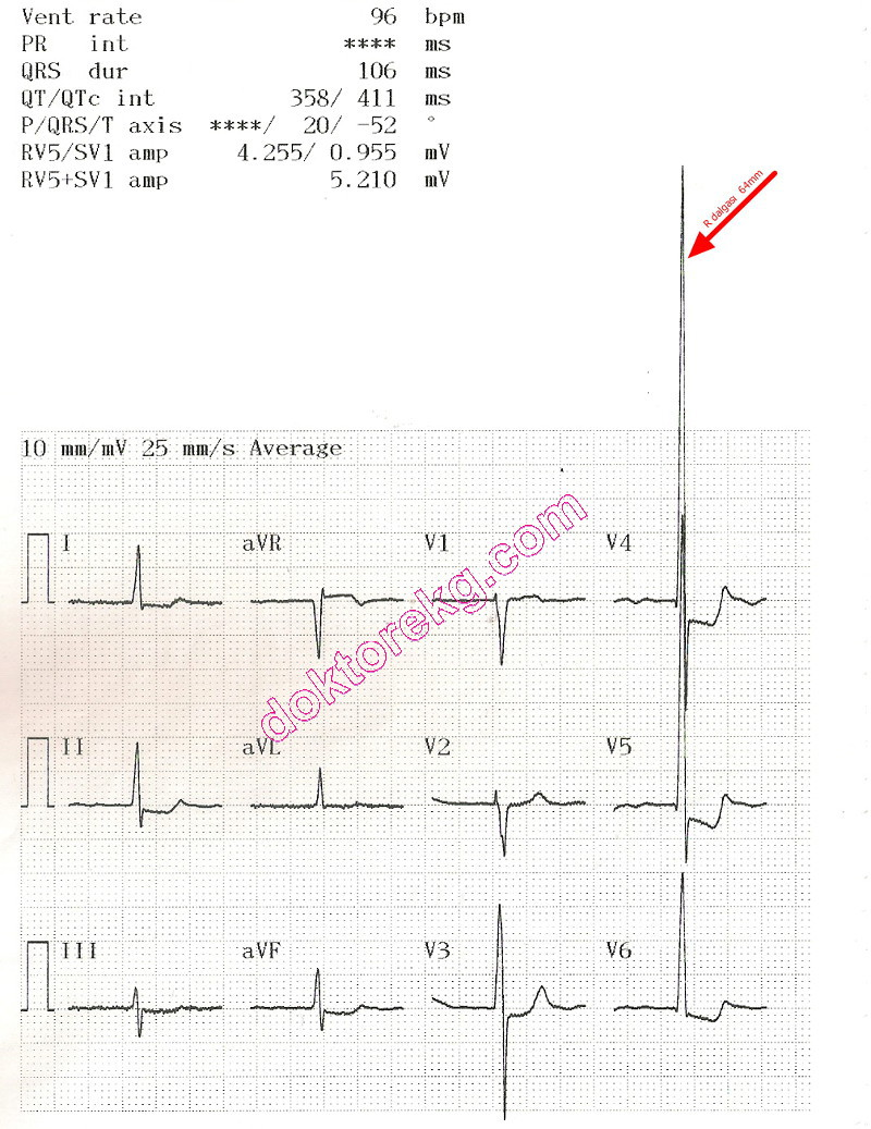hight resolution of ecg 4b the ecg summary page of the same patient is seen above now the machine has printed all derivations at a calibration of 10 mm mv