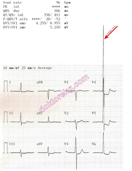 small resolution of ecg 4b the ecg summary page of the same patient is seen above now the machine has printed all derivations at a calibration of 10 mm mv
