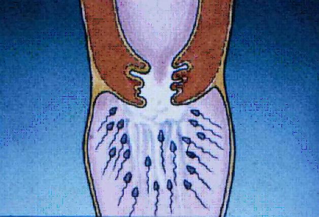 2. Tappo di muco: gli spermatozoi non passano e muoiono in poche ore.