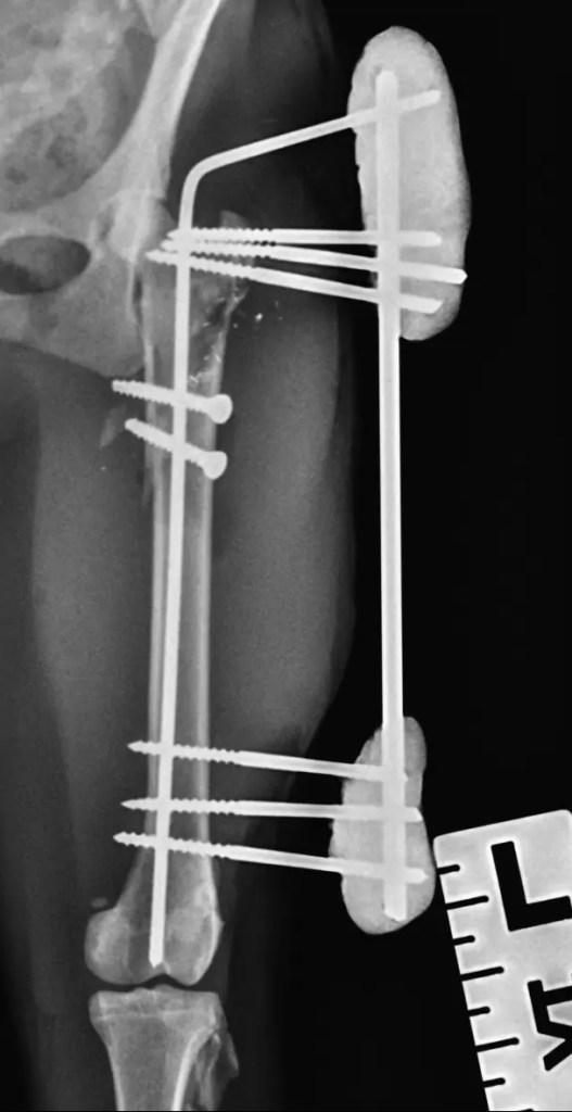 RTG po zákroku - stabilizace zlomeniny pomocí externího fixátoru.
