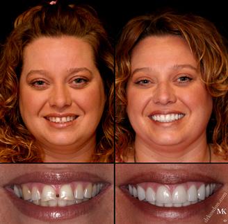 Veneers  Marlborough MA  Metrowest Dental Center