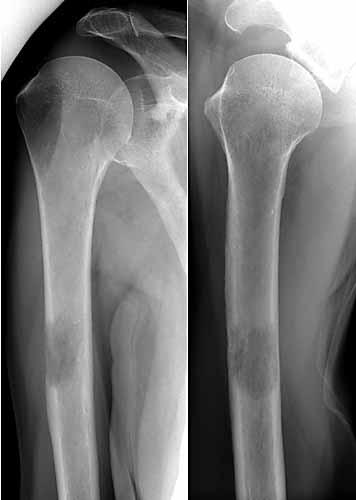 Skelett Trauma Rntgendiagnostik Humerusfrakturen