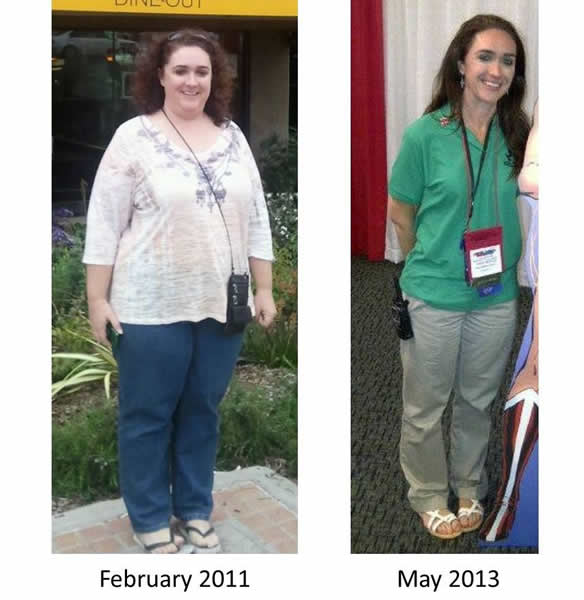 What Patients share about Mexicali Bariatric Center