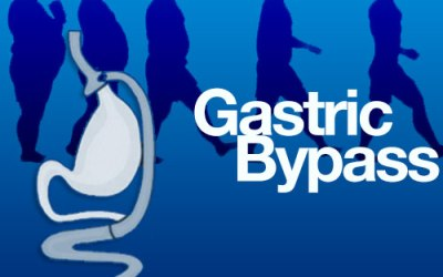 Gastric Bypass and Acid Reflux