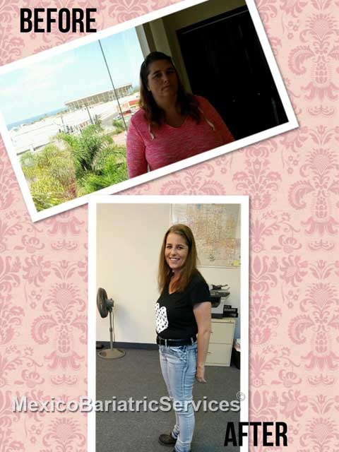 shelly before after weight loss surgery mexico