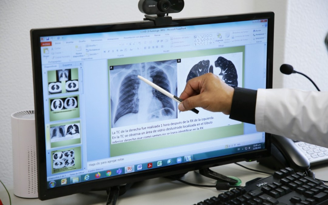 Atiende IMSS daño pulmonar y respiratorio causados por Covid