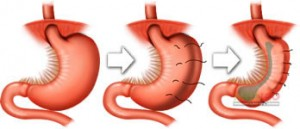 Gastric Plication