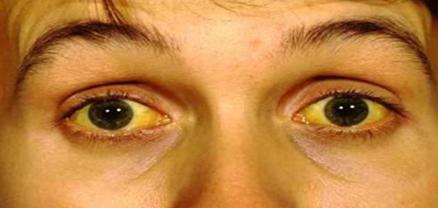 علاج اصفرار العين