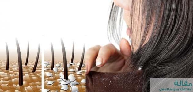 كيفية علاج قشرة الرأس