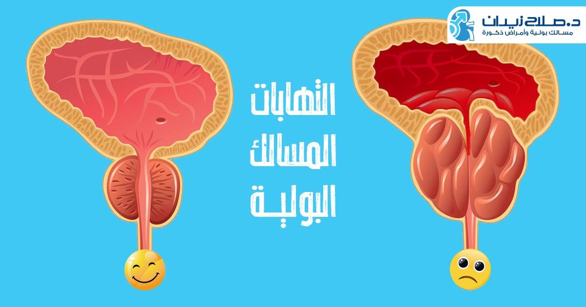 معلومات عن التهاب المسالك البولية عند الأطفال