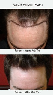 hair-loss-treatments-san-francisco