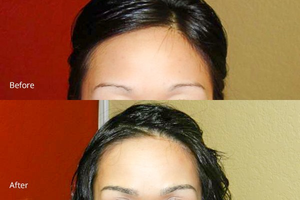 Before and After Bay Area Eyebrow Enhancements