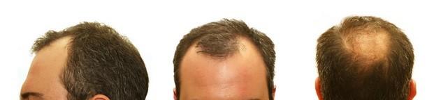 bald treatment San Jose San Francisco